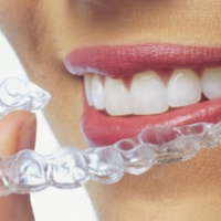cheap invisalign dentists greenslopes