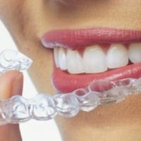 cheap invisalign dentists greenslopes