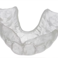 clear Mouth retainer
